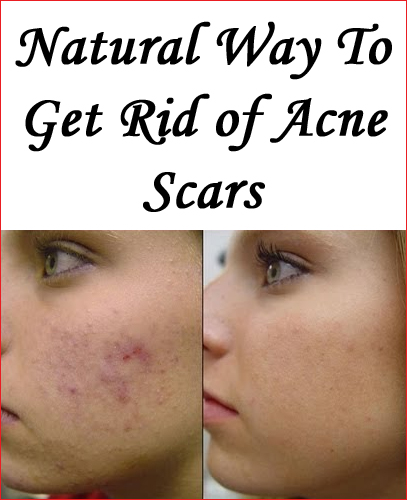 how to get rid of acne scars korean beauty