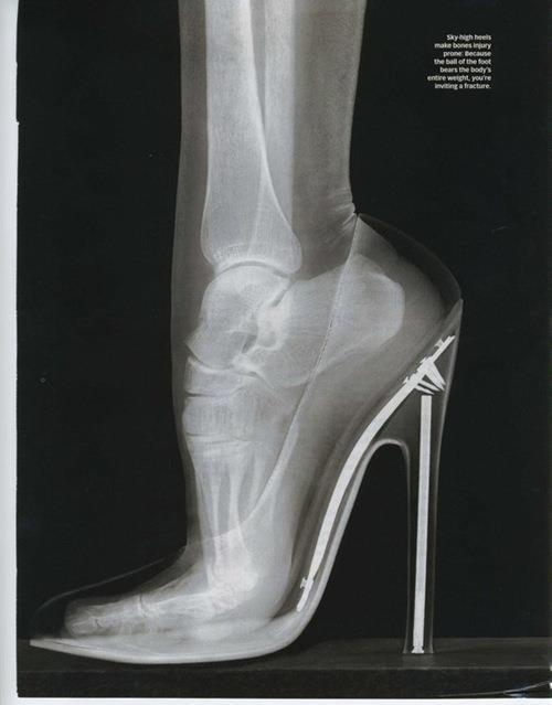 feet, high heel, high heels, shoes, skeleton, women, x-ray, xray